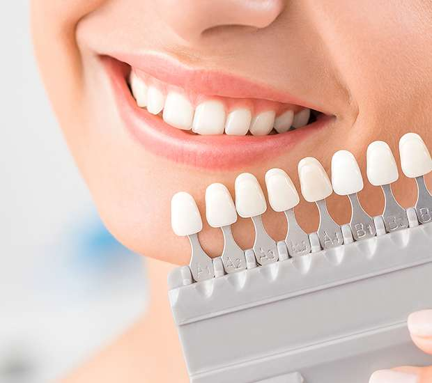 Brookfield Dental Veneers